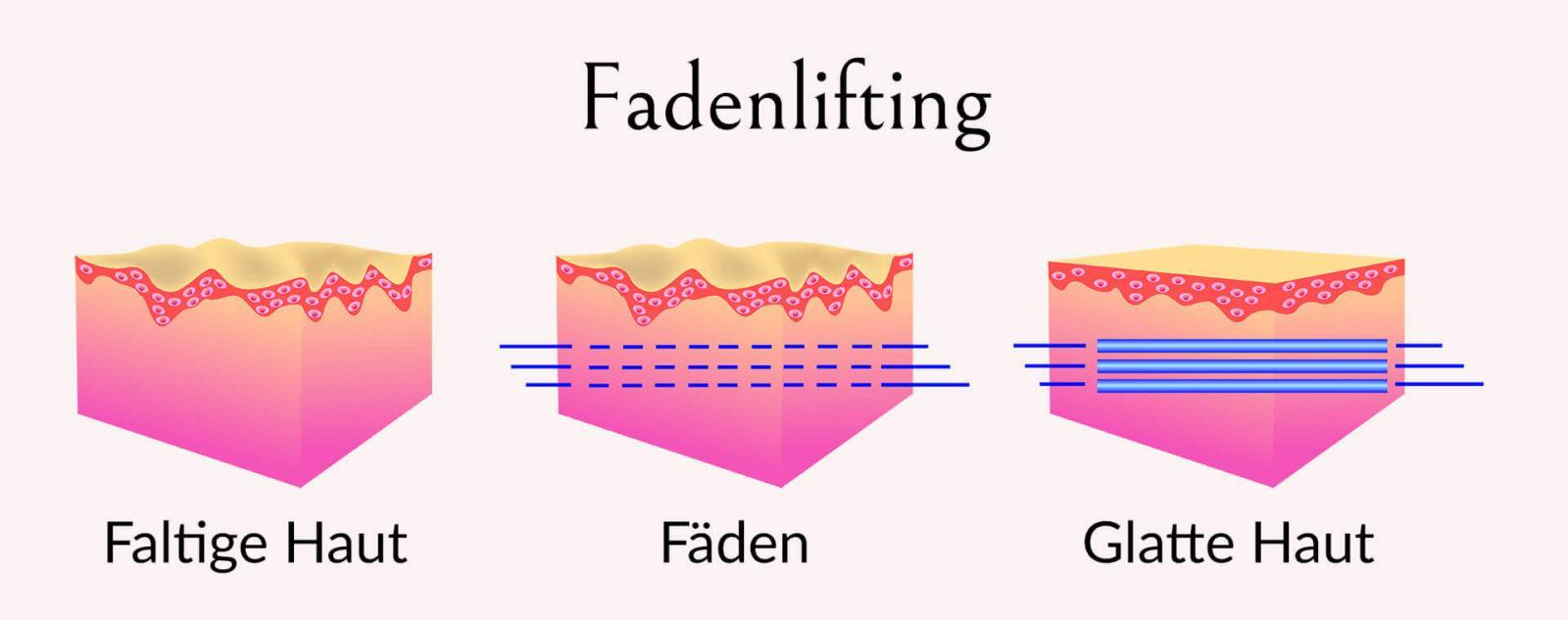 Aufbau der Haut mit eingesetzten Fäden