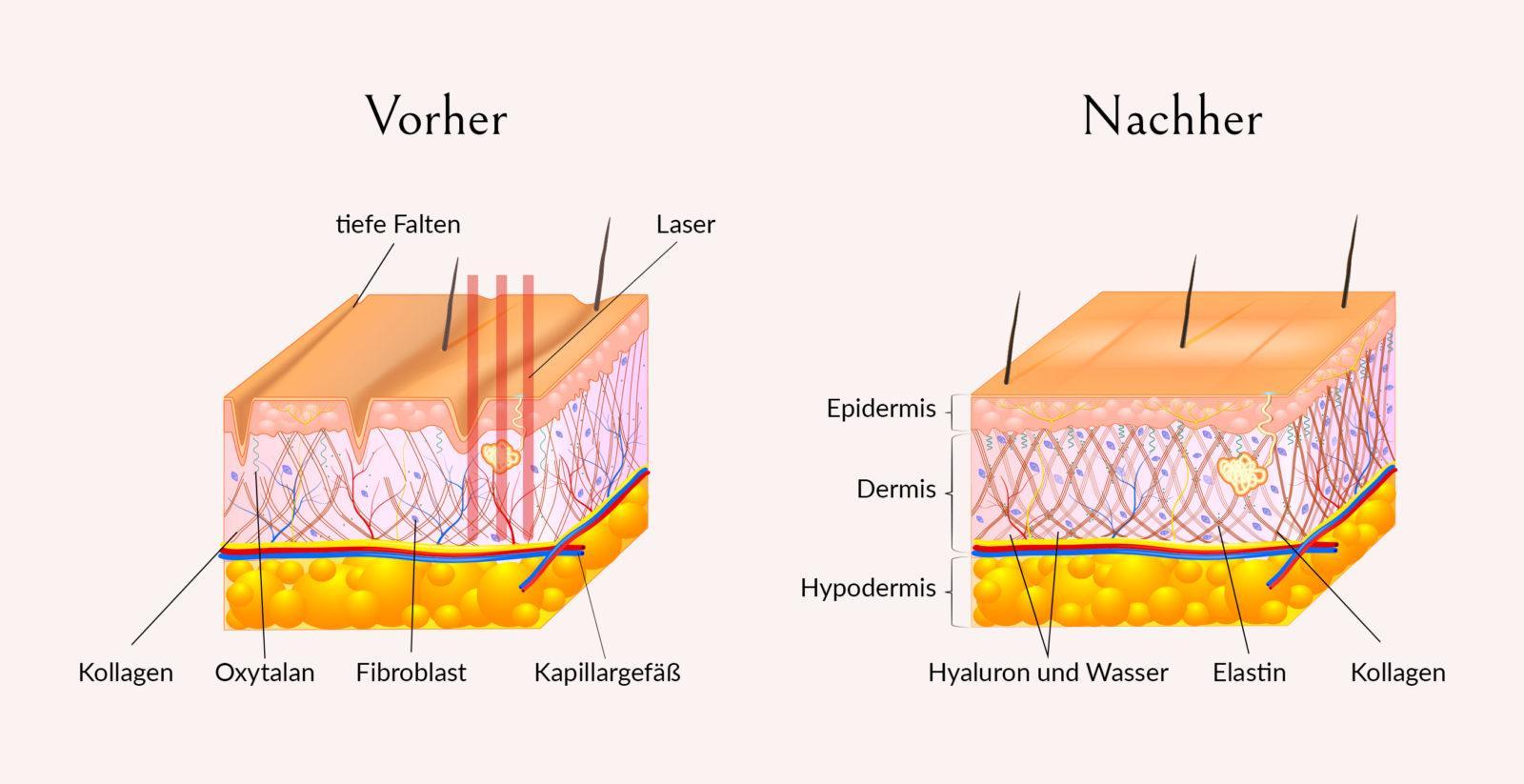 Bild von Hautaufbau vor und nach der Laserbehandlung