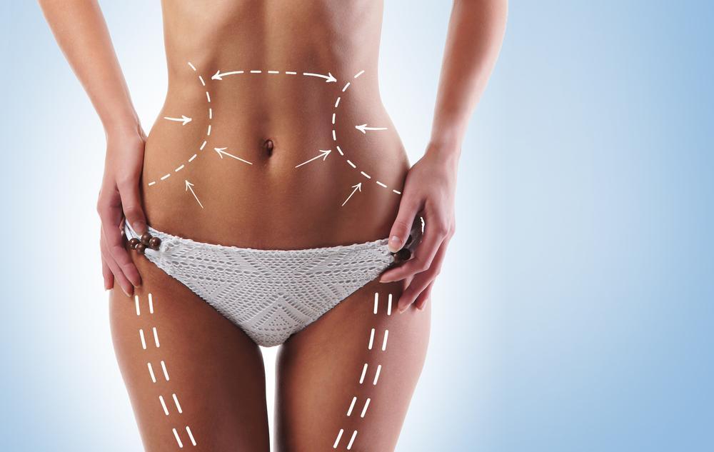 Ausschnitt einer Frau im Bikini mit eingezeichneten Linien
