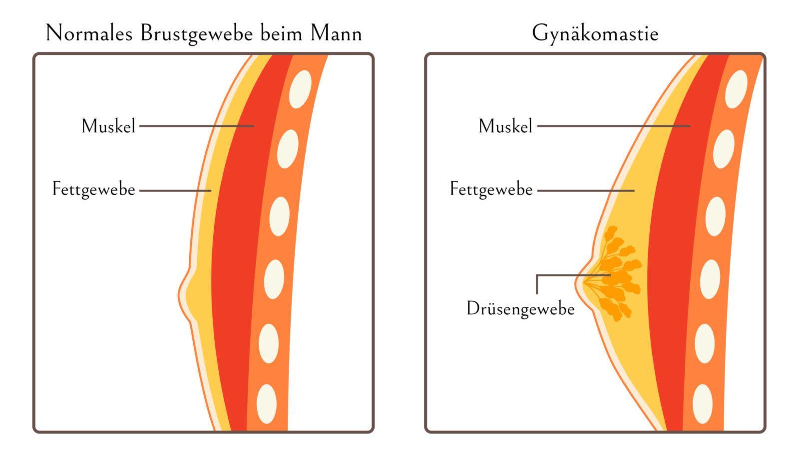 anatomisches Bild einer Brust mit Knochen-, Muskel-, Fett- und Drüsengewebe