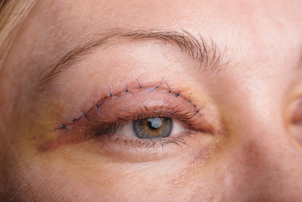 Nahaufnahme einer Frau mit Fäden am Auge