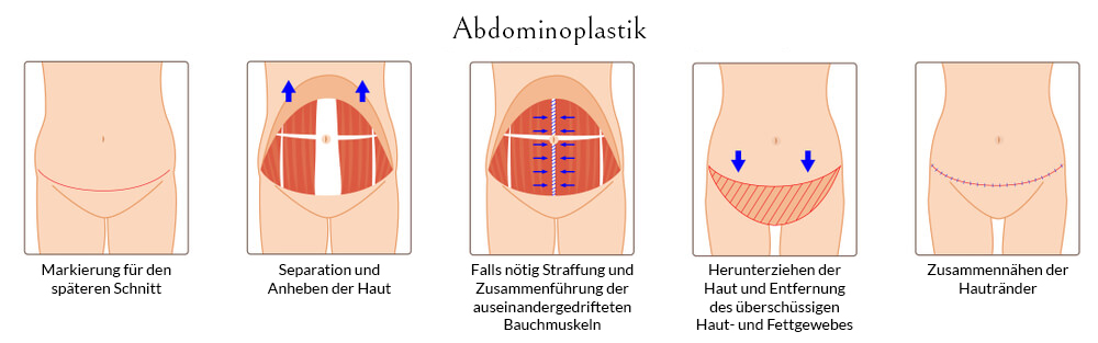 Ablaufschema einer Bauchdeckenstraffung