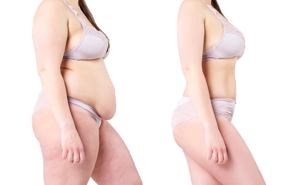 Vorher Nachher Bild von einer Frau mit Bauchdeckenstraffung