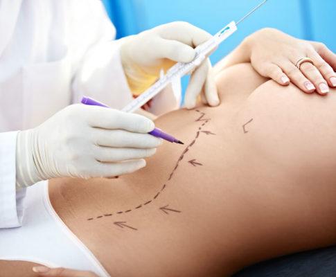 Arzt zeichnet Linien auf den Bauch einer Frau